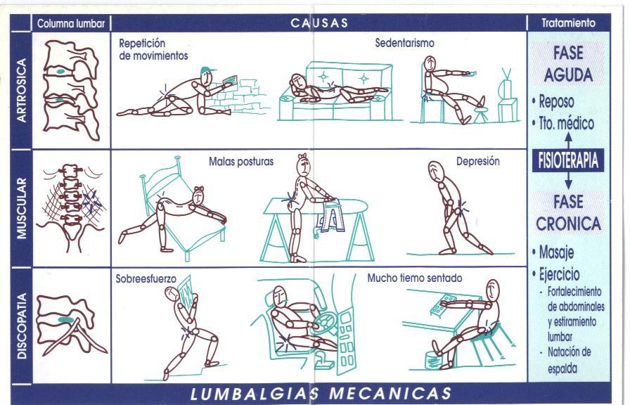 remedios para el dolor de lumbago