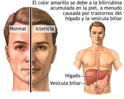 medicina para la gota grande acido urico inflamacion del tobillo acido urico normal en la mujer