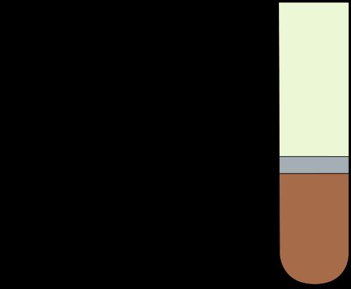 remedio casero para aliviar el dolor del acido urico quem tem acido urico pode comer limao como eliminar naturalmente cristales de acido urico en las articulaciones