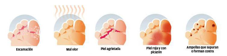 Las pastillas para el tratamiento del hongo de la piel y las uñas
